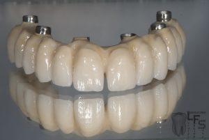 Protesis Sobre Implante Laboratorio Dental Felipe Sanz